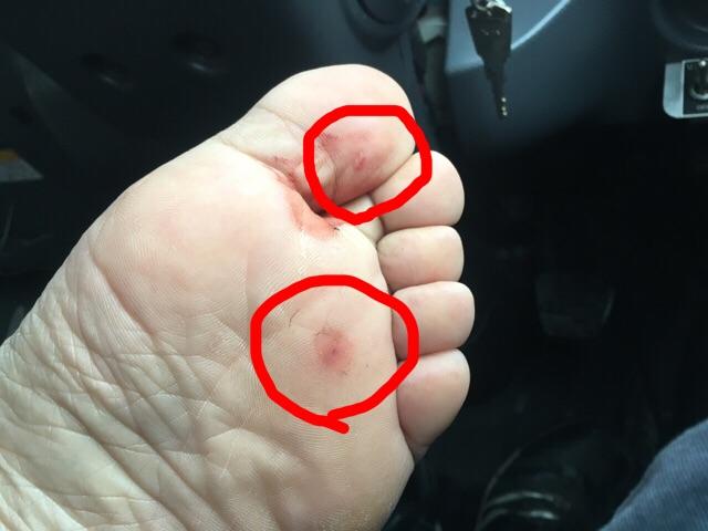 腫れ た とげ 刺さっ が ウニに刺された時の治療方法: 10